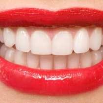 Отбеливание зубов, в Краснодаре
